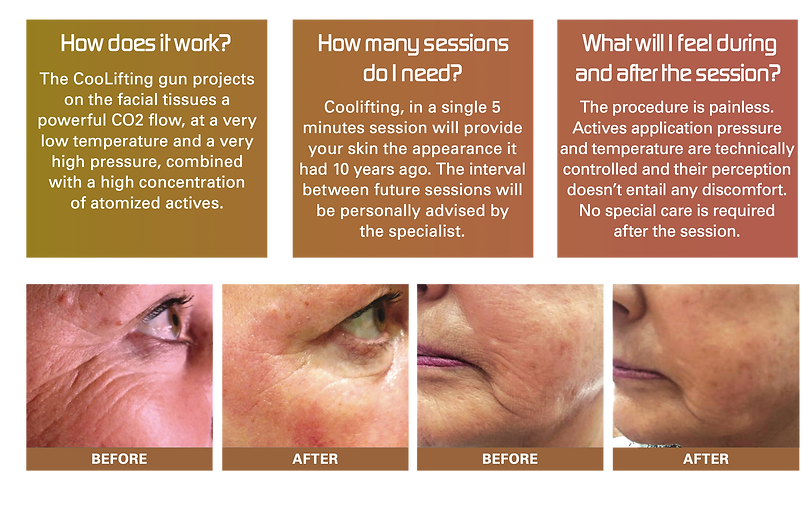 Coolift, Hyperpigmentation, Anti-cellulite, Lip Fillers, Dermal Fillers, Botox Stamford Lincolnshire UK | G&T Aesthetics