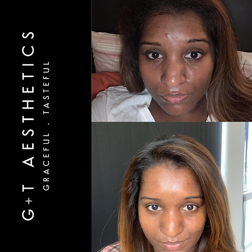 PCA Skin at G&T Aesthetics | Stamford | Lincolnshire