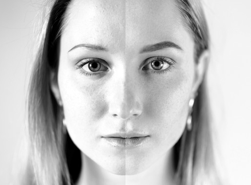 Tackling Hormonal Acne