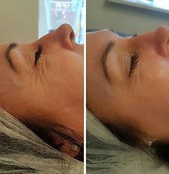 Coolift, Hyperpigmentation, Anti-cellulite, Lip Fillers, Dermal Fillers, Botox Stamford Lincolnshire UK | G&T Aesthetics