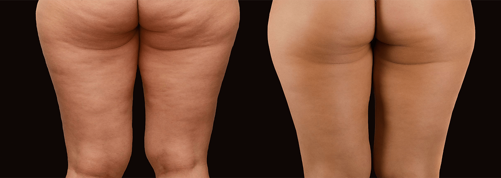Cellulite Removal at G & T Aesthetics Ltd