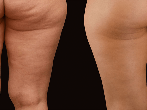 How to Manage & Treat Cellulite