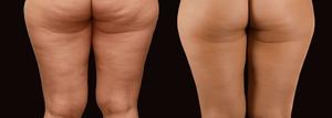 Cellulite Removal at G & T Aesthetics Ltd