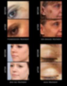 Cryopen Dermal Fillers Botox Stamford Lincolnshire UK | G&T Aesthetics
