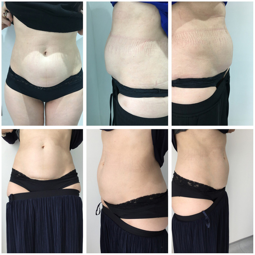 Before and after abdomen treatment with AQUALYX G&T Aesthetics Stamford Lincolnshire