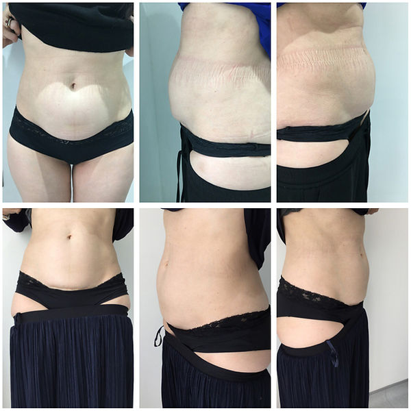 Before/After Aqualyx Abdomen Treatment G&T Aesthetics Stamford Lincolnshire