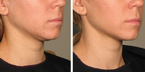 Before and after chin treatment with AQUALYX G&T Aesthetics Stamford Lincolnshire
