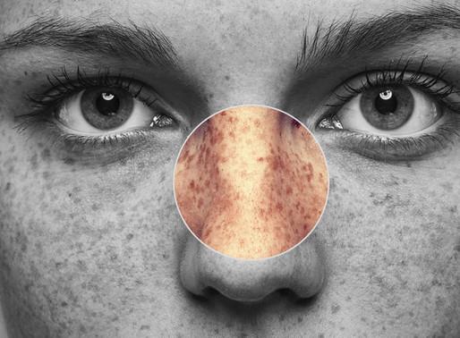 Managing Hyperpigmentation