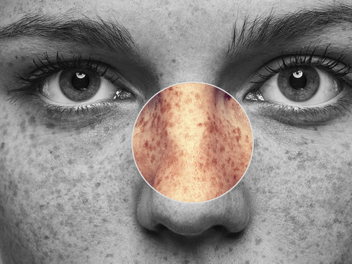 Managing Hyperpigmentation