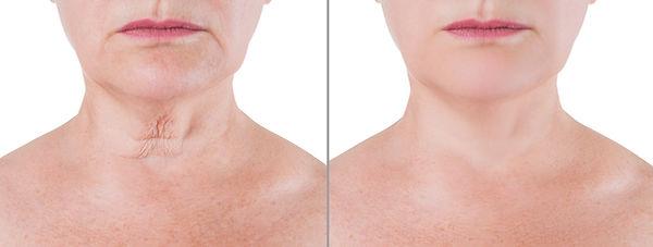 Skin rejuvenation on the neck, before af