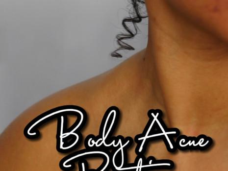 Top 5 Body Acne Tips