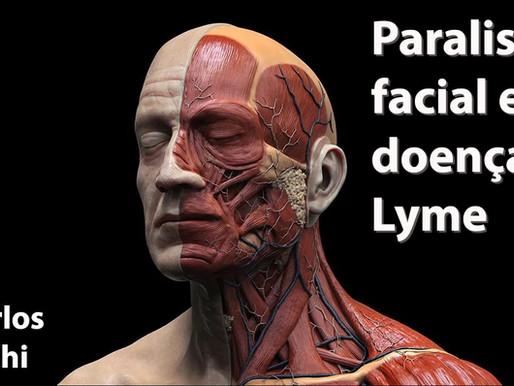 Doença de Lyme e paralisia facial