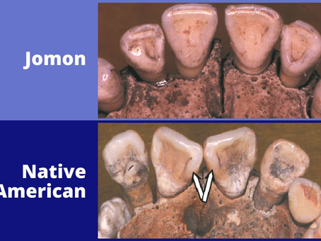 A popular theory of Native American origins debunked by genetics and skeletal biology