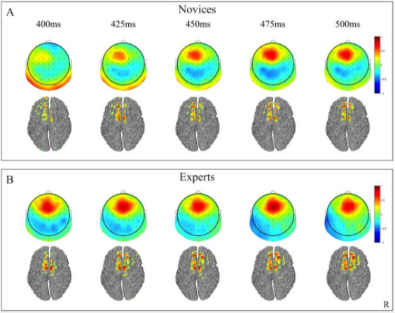 Changes in brain activity over time in the general public and baseball players. Top-Public, Bottom-Athlete ⓒColumbia University, Jordan Muraskin