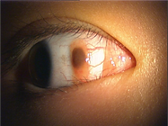 結膜母斑.png