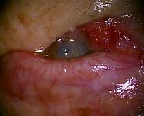 脂腺癌2.png