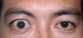 下垂ではない 甲状腺眼症.png