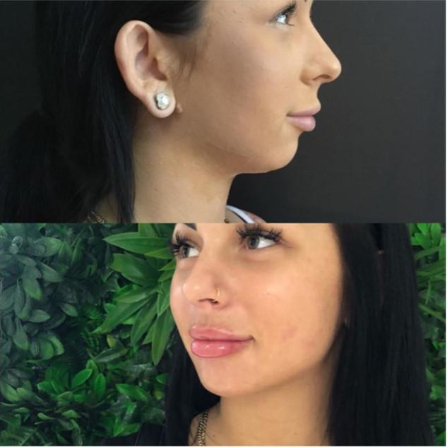 2 x fat dissolving, chin, lips b.JPG