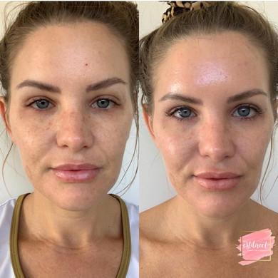Before & After Jessner Peel