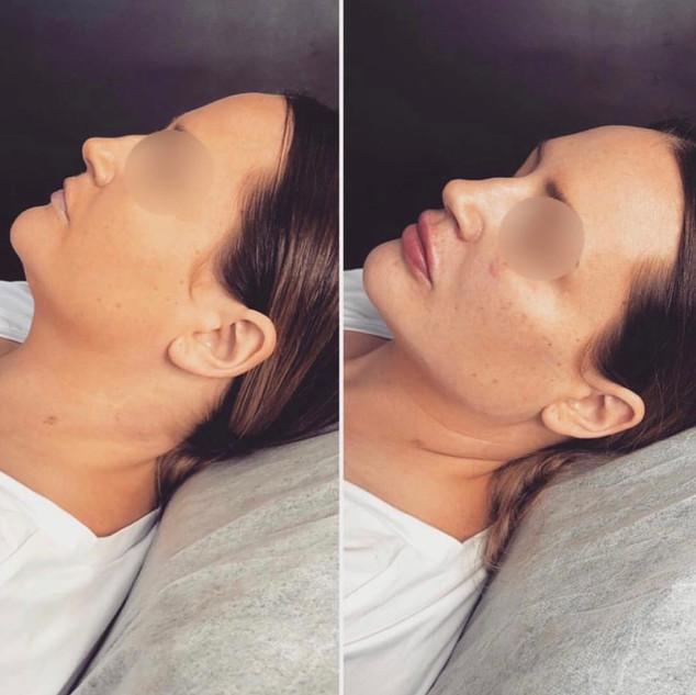 7ml - cheeks, jawline, chin, lips.jpg