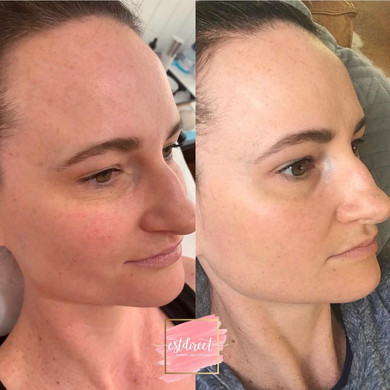 Before & After TCA Peel
