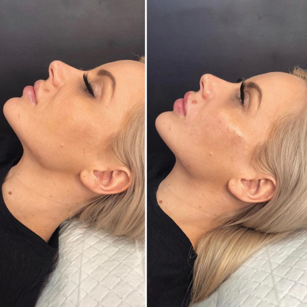 3 point mini face lift with lips and nas