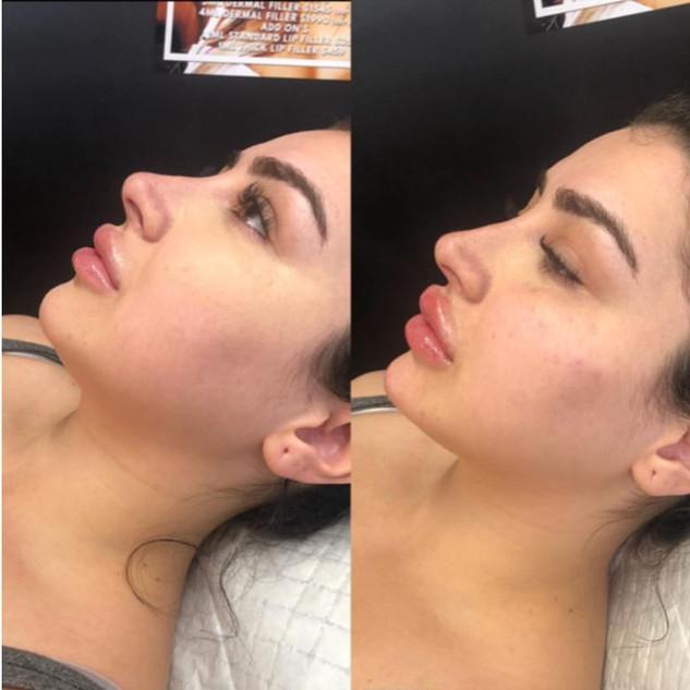 4ml - cheeks, chin, lips.JPG