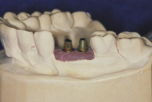 οδοντοτεχνογνωσία