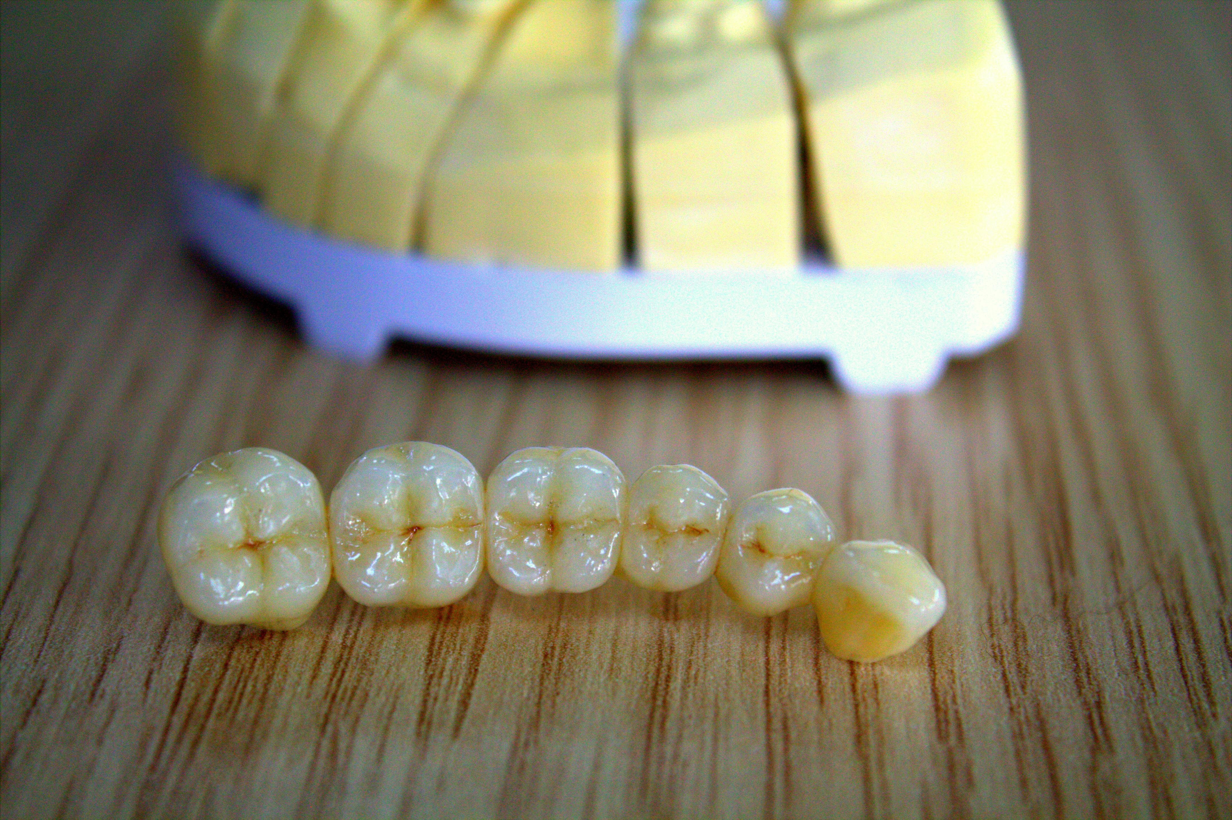 οδοντοτεχνογνωσία ζιρκονιο