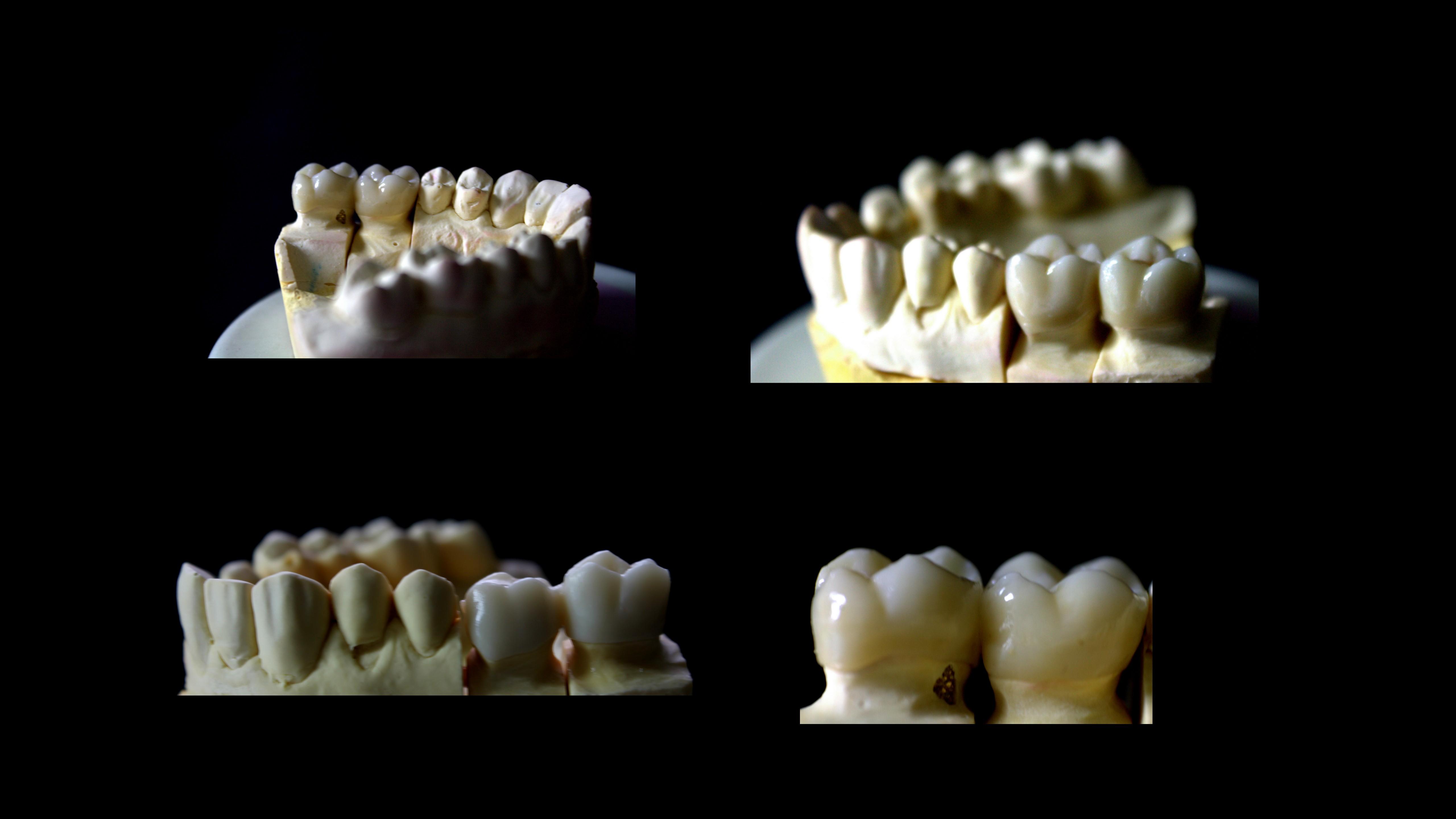 zir.οδοντοτεχνογνωσία ζιρκονιο