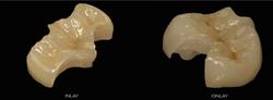 dental-inlay-onlay-and-full-crown