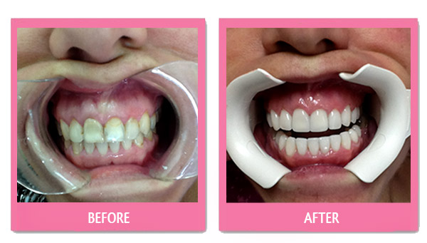 dental-before-and-after-porcelain-veneers-cheap-bangkok