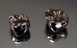 metal-crowns οδοντοτεχνογνωσία