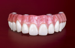 services-ic-bruxzir-full-arch-implant-prosthesis