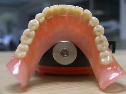 οδοντοτεχνογνωσία θερμοπλαστικά