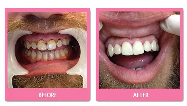 dental-porcelain-veneer-thailand-before-and-after