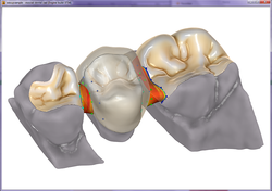 exocad οδοντοτεχνογνωσία