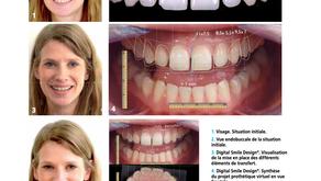 Analyse diagnostique d'un traitement esthétique : Digital Smile Design®