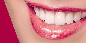 DSD_smile-design-1-870x432_edited.jpg