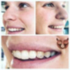 Tooth Gems.jpg