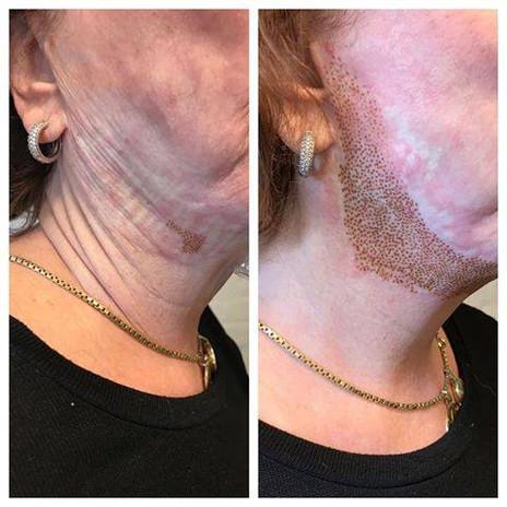 SKINLIFT PRO behandling på slapp hals