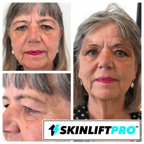 Skinlift pro behandling på tunge øyelokk