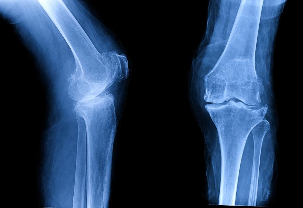 Osteoarthritis of Knee on x-ray