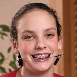 Ortodoncia Clásica y Efectiva