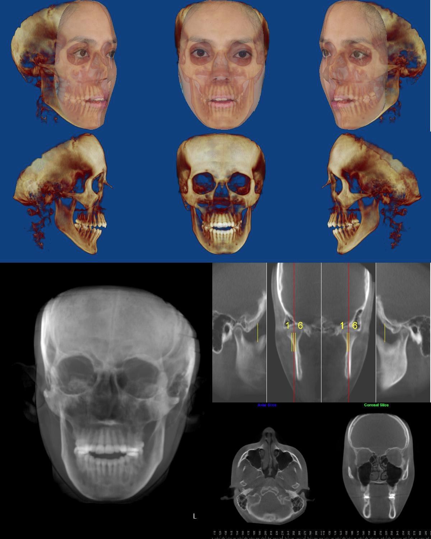 Tomografía Maxilofacial