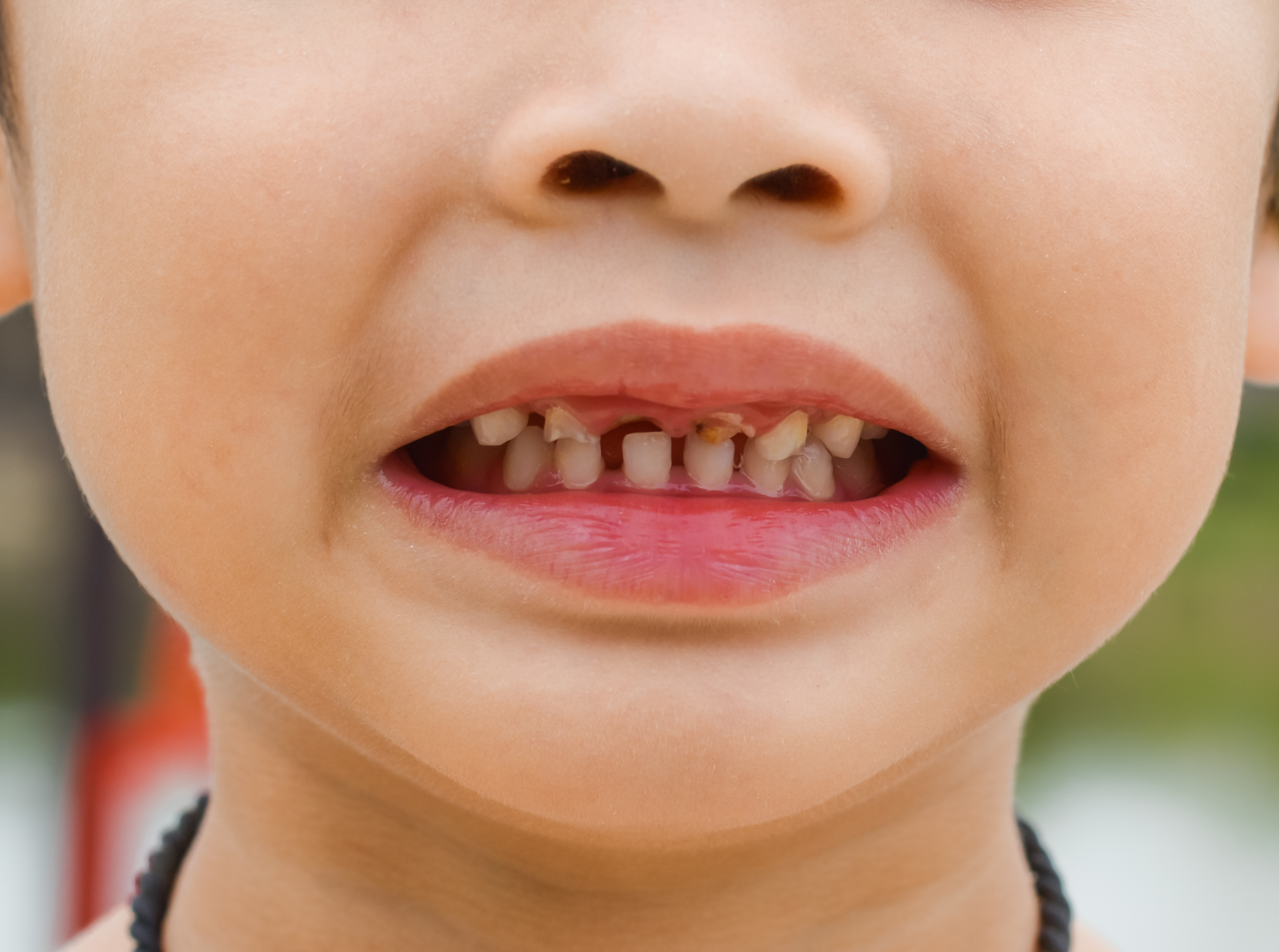 Caries y Fracturas Dentales