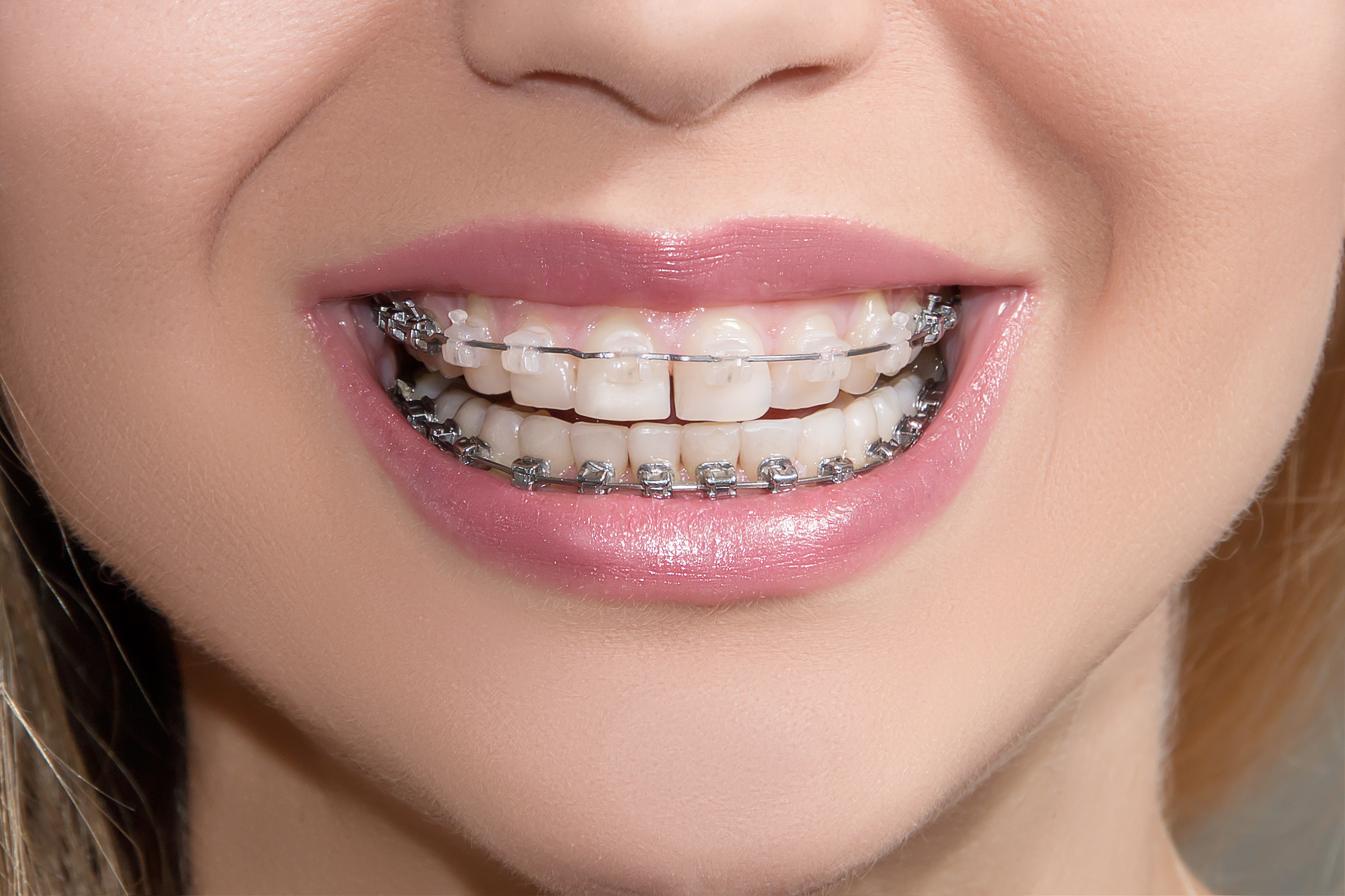 Tratamiento de Ortodoncia