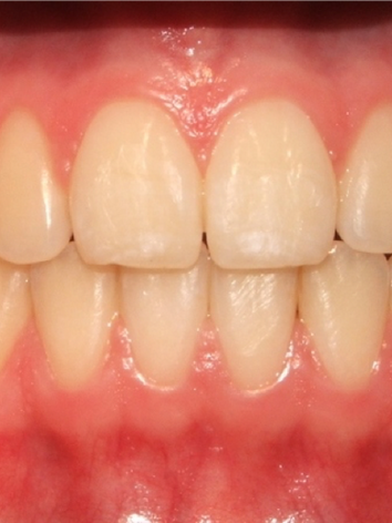 Dental Frontal Final.png