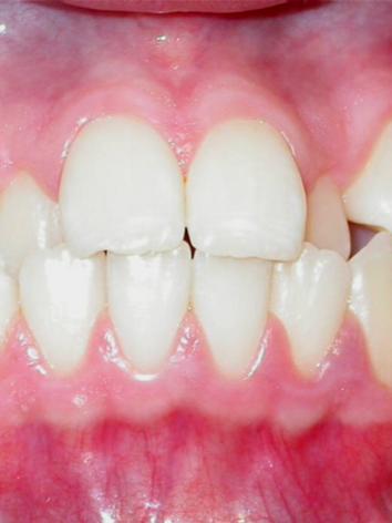 Dental Frontal Pre.png