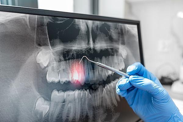Doctor looking at human teeth x-ray on c